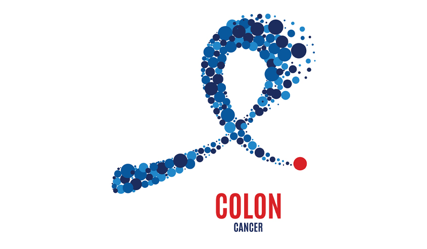 Can Colon Cancer Be Prevented Vital Imaging